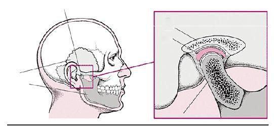 医生提供的下颌示意图