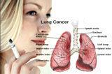 肿瘤周如何预防治疗癌症