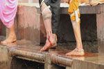 印度神奇的放血治病法