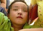 温州小学生流鼻血谁是罪魁祸首?