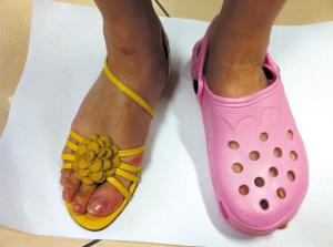 为什么穿洞洞鞋容易出事?